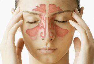 sinusitis-specialist-dr-allergist-nyc-01