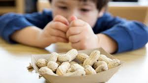 food-allergist-expert-allergies-child-03