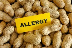 top-nyc-allergist-for-nut-allergies-specialist-01